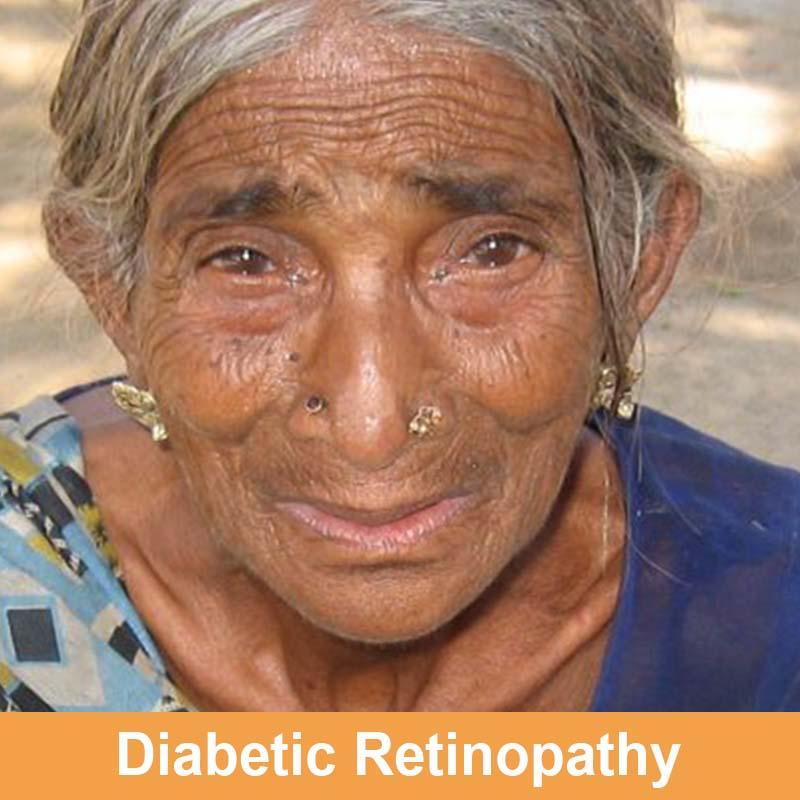 Diabetic Retinopathy